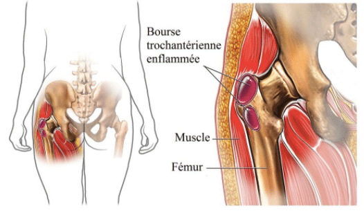 Tendinite de la hanche