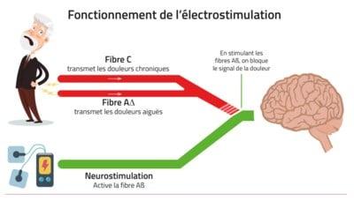 Soulagement-douleur-électrostimulation