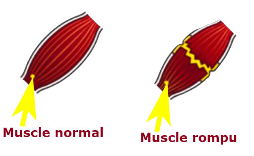 rupture musculaire